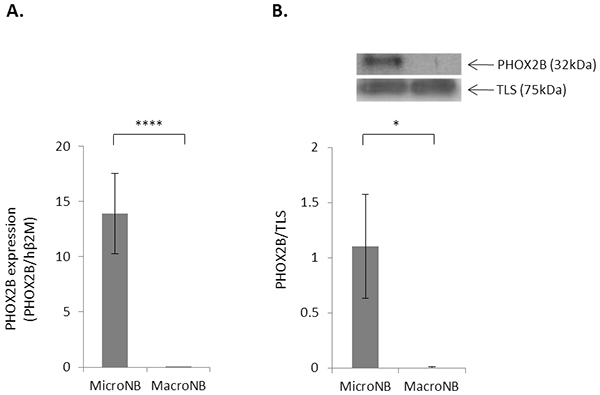 PHOX2B expression is higher in MicroNB than in MacroNB cells.