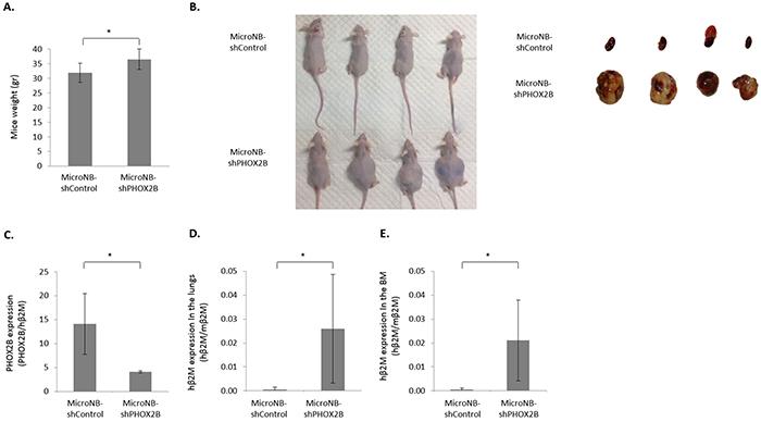 Downregulation of PHOX2B increases tumorigenicity and metastasis.