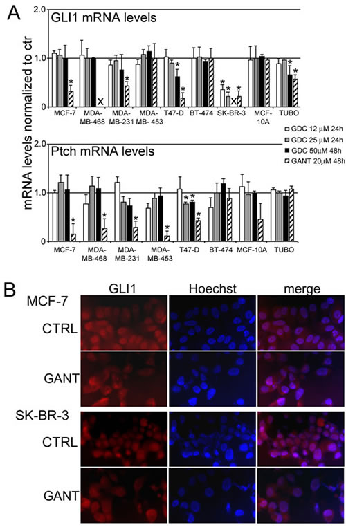 The GLI1 and Ptch mRNA levels and the nuclear translocation of GLI1 after treatment with GDC-0449 (GDC) or GANT-61 (GANT) in breast cancer cell lines.