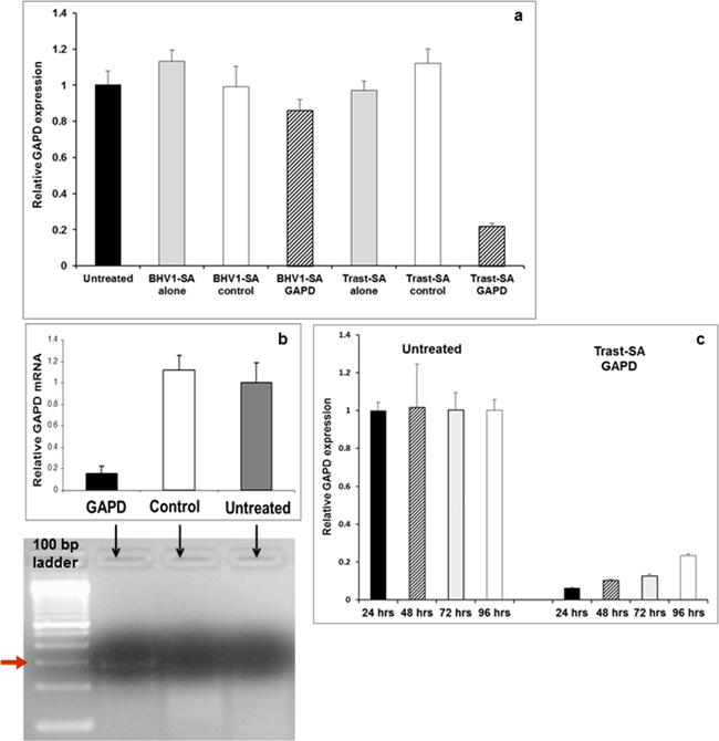 Suppression of GAPD gene expression by Trast-SA polymer mediated siRNA delivery in SKOV3 ovarian cancer cells.