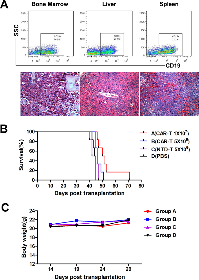 In vivo CAR-T cell treatment in murine B-ALL model.