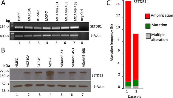 Expression analysis of SETDB1 in breast cancer.