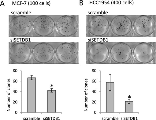 SETDB1 growth-promoting effects in breast cancer cell lines.