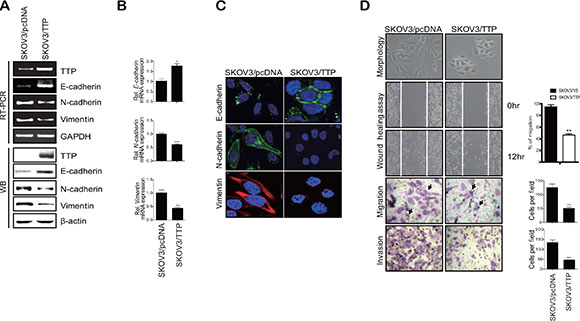 TTP overexpression induces a shift from a mesenchymal to an epithelial phenotype in human cancer cells.