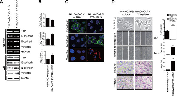 Down-regulation of TTP by siRNA induces a shift from the epithelial to mesenchymal phenotype in human cancer cells.