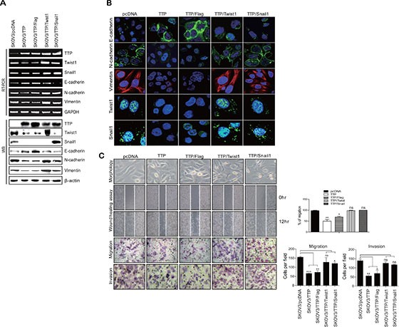 Overexpression of Twist1 or Snail1 cDNA without the 3′UTR attenuates the inhibitory effect of TTP on the mesenchymal phenotype.