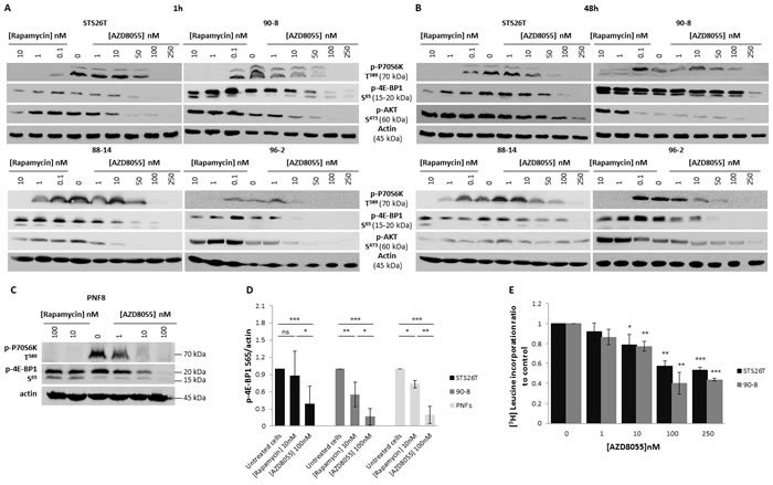 AZD8055 strongly blocks both mTORC1 and mTORC2 signaling pathways and inhibits protein translation in MPNST cell lines.