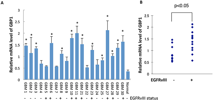 GBP1 is upregulated and correlated with EGFRvIII status in GBM specimens.