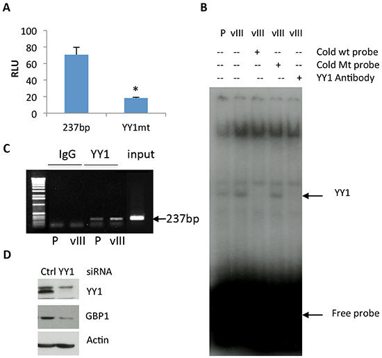 YY1 is involved in regulation of EGFRvIII-mediated GBP1 expression.
