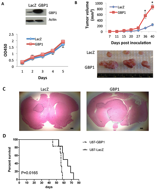 GBP1 overexpression increases glioma tumor growth rate in mice.