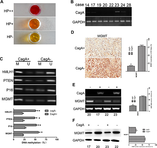 MGMT gene methylation and its expression in HP-associated GC tissues.