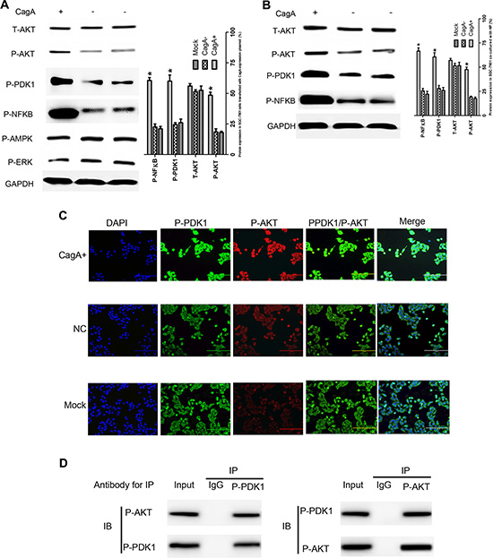 CagA activates AKT-NFκB pathway by enhancing the interaction of P-PDK1 and P-AKT.