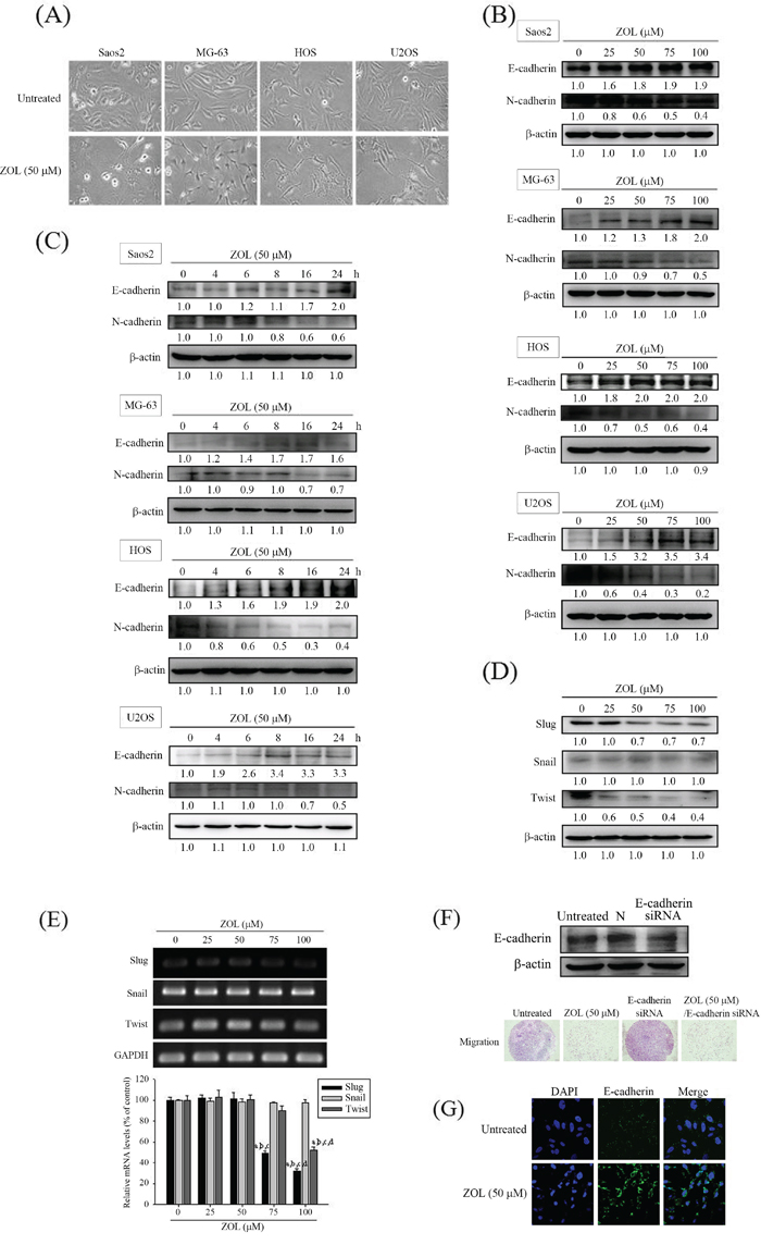 Effects of zoledronate on cell morphology and the EMT in 4 osteosarcoma (Saos2, MG-63, HOS and U2OS) cells.
