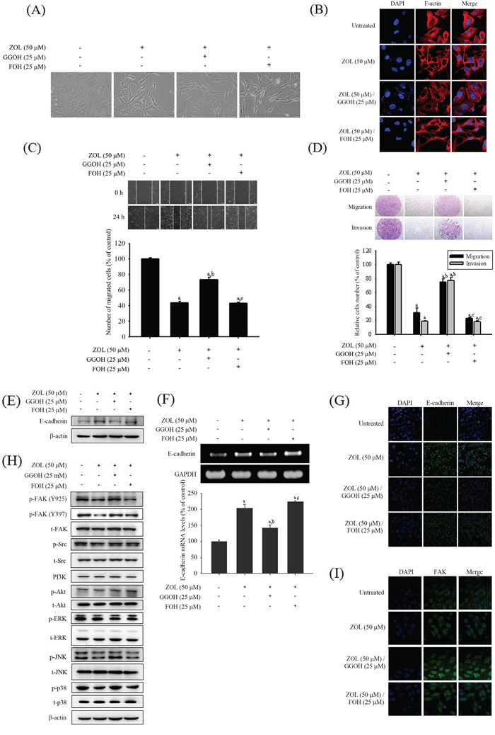 Effects of GGOH and FOH on zoledronate-induced anti-metastatic effects in U2OS cells.