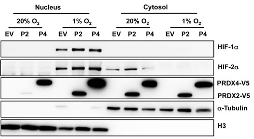 Hypoxia induces the nuclear translocation of PRDX2 and PRDX4.
