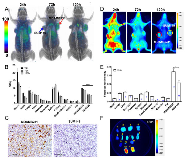 Imaging PD-L1 expression in orthotopic breast cancer xenografts with [