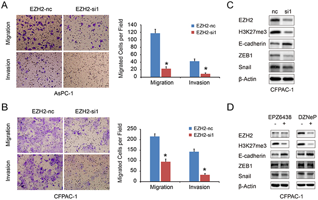 EZH2 knockdown in pancreatic cancer cells inhibits cell migration and invasion.