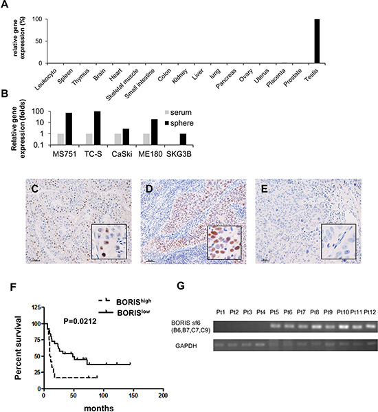 The cancer/testis gene BORIS is preferentially expressed in CSCs and BORIS expression is a marker of poor prognosis for patients with advanced cervical cancer.