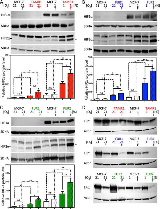 Effect of hypoxia and antiestrogen treatment on HIF1α and HIF2α in MCF-7 and antiestrogen-resistant breast cancer cells.