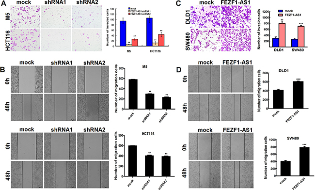 FEZF1-AS1 promotes migration and invasion of CRC cells in vitro.