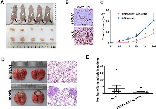 Knockdwon of FEZF1-AS1 repressed CRC growth, invasion and metastasis in vivo.
