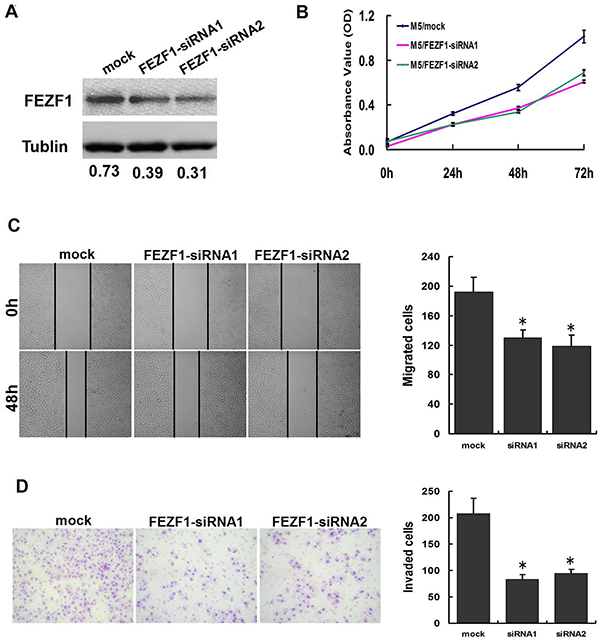 Knockdown of FEZF1 inhibited proliferation, invasiveness and migration of CRC cells in vitro.
