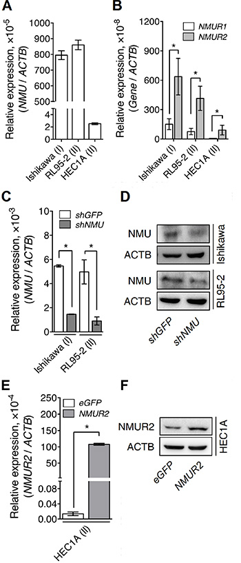 The endogenous and manipulated transcriptional profiles of NMU and NMURs in the various endometrial cancer cell lines.