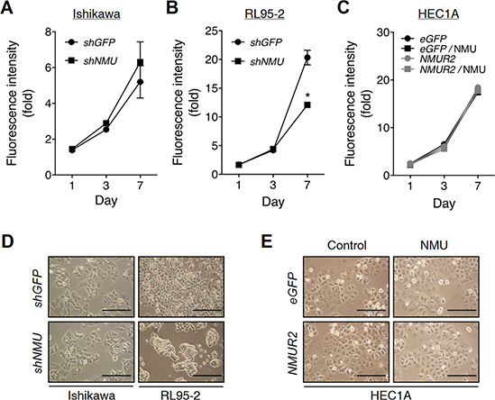 Effects of NMU knockdown on the cell growth and morphology of endometrial cancer cells.