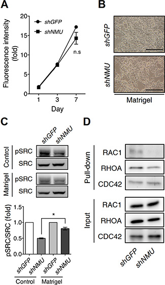 Matrigel culture remedies the effects of NMU knockdown in RL95-2 cells.