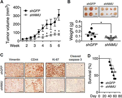 Effects of NMU knockdown on tumor growth and animal survival rate in vivo.