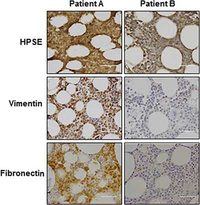 Heparanase expression is positively correlated with expression of vimentin and fibronectin in myeloma patient cells.