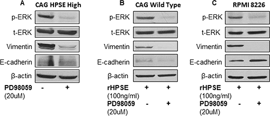 ERK signaling inhibitor reverses vimentin expression in myeloma cells.