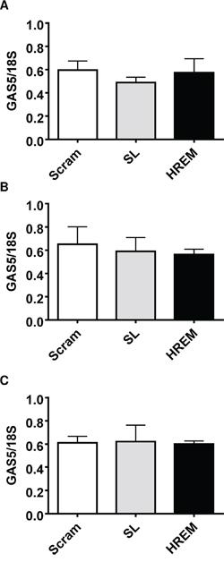 Effect of the GAS5 HREM DNA oligonucleotide on endogenous GAS5 lncRNA levels in breast cancer cells.
