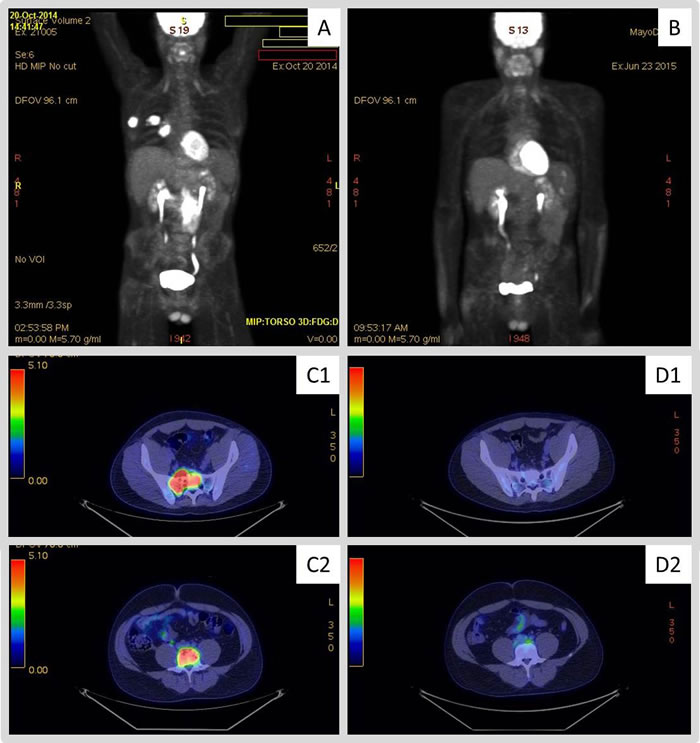 18F-fluorodeoxy-glucose–positron-emission tomography (FDG-PET) images obtained to evaluate response to therapy with pembrolizumab.