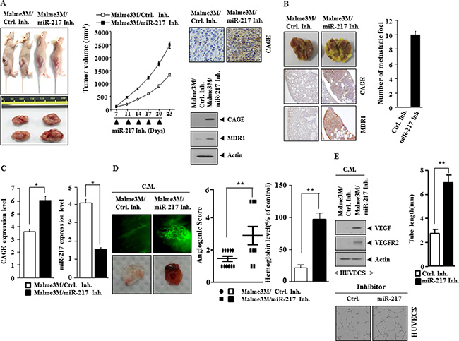 miR-217 inhibitor increases the tumorigenic potential, metastatic potential and angiogenic potential of Malme3M cells.