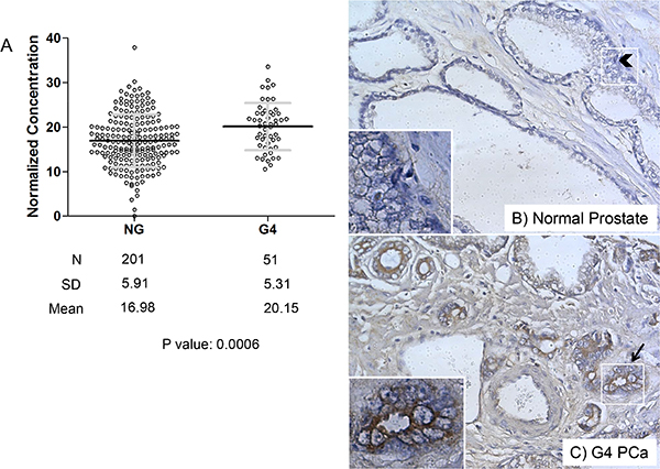 Perlecan concentration is increased in Gleason grade 4 (G4) tissue over normal gland (NG) tissue in the TMA.
