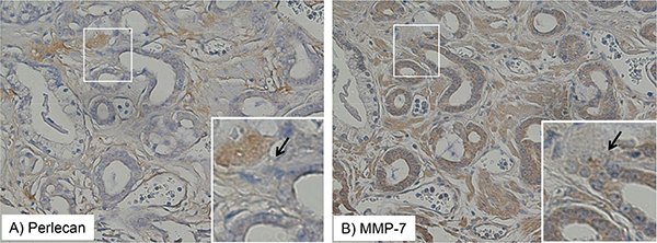 Perlecan and MMP-7 stain expression intersect in tissue microarray.
