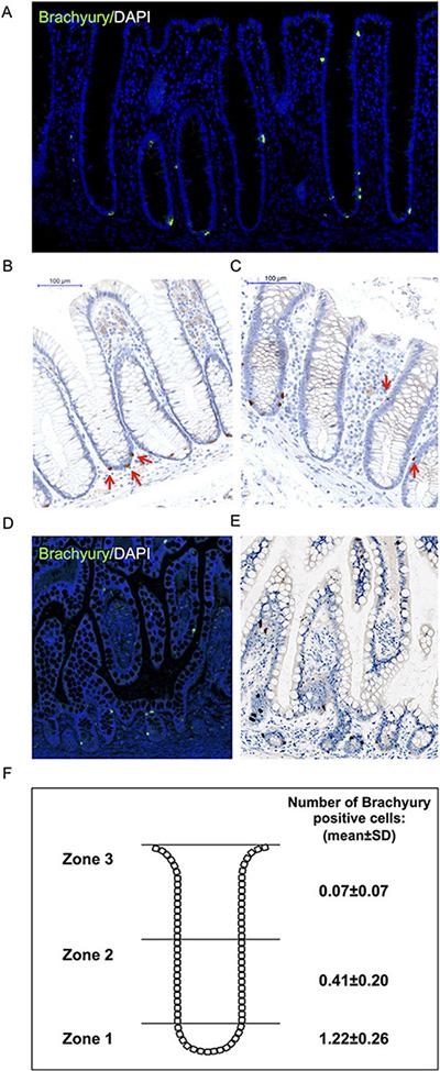 Immuno-detection of Brachyury in normal human intestinal crypts.