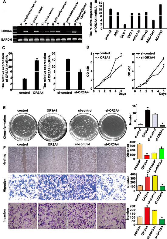 OR3A4 promotes proliferation, migration, and invasion in gastric cancer cells.