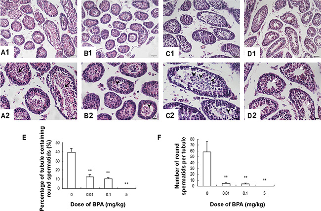 Testis histology was damaged by BPA exposure.