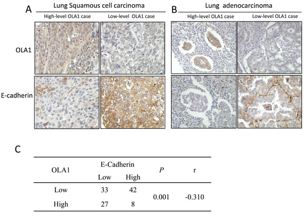 IHC analysis of OLA1 and E-cadherin expression in human lung cancer tissues.
