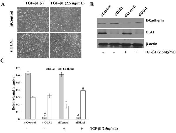 Knockdown of OLA1 results in attenuation of TGF-β1-induced EMT in A549 cells.