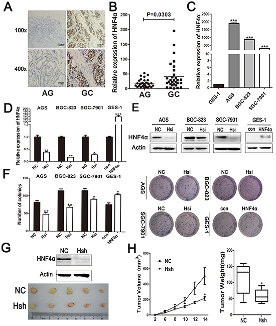 Expression ofHNF4α in clinical gastric tissues and its role in regulating gastric cell proliferation.