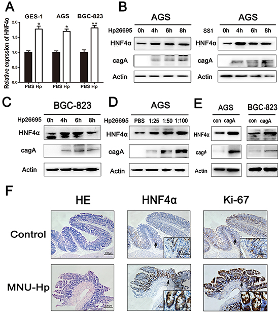 HNF4α expression level was up-regulated by Hpinfection in vitro and in vivo.