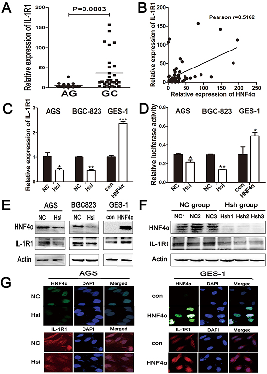 IL-1R1 is up-regulated in gastric cancer tissues and it is the direct target of HNF4α.