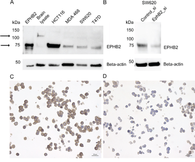 EPHB2 Antibody validation by immunoblot and immunocytochemistry.