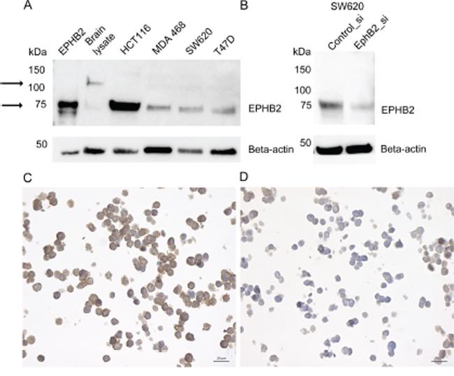 EPHB2 Antibody validation by immunoblot and immunocytochemistry.