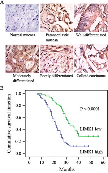 LIMK1 expression is correlated with survival probability.