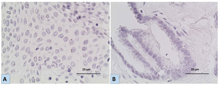 Representative images for the results of Chromogenic In situ hybridization (CISH) using EGFR specific probe