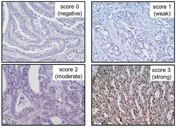 Immunohistochemical findings related to EZH2 expression in colorectal cancers.
